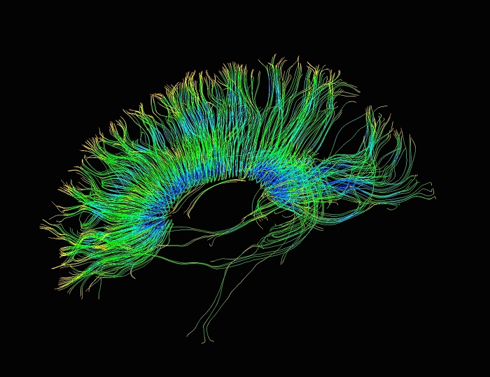 According to a study that was overseen by Ph.D. Staci Gruber of McLean Hospital, marijuana heightens the performance of cognitive tasks mediated by the frontal cortex. Callista Images/ Getty Images