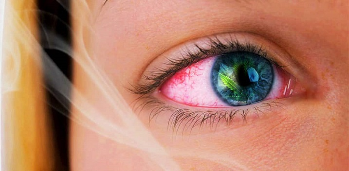 How to Get Rid of Red Eyes After Smoking Weed