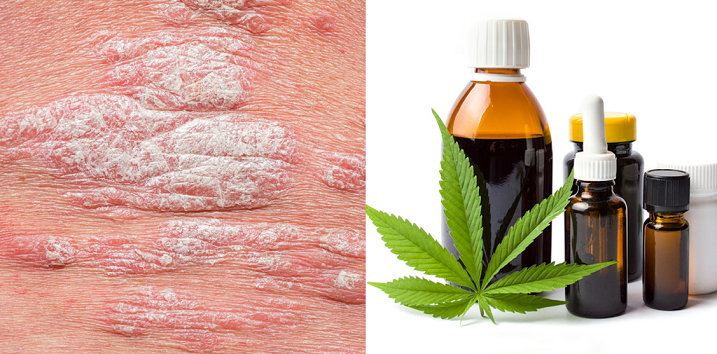 Is CBD The Future of Psoriasis and Eczema Cure?